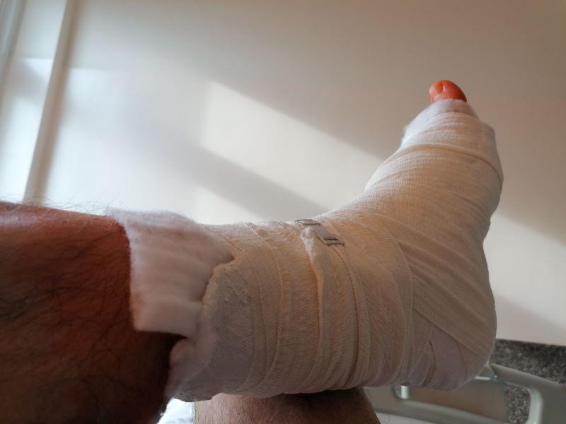Noga w szpitalu